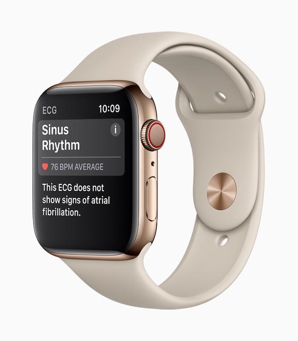Apple Watch-Series4_ECG-SinusRhythm_09122018